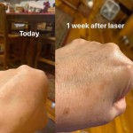 laser before and after